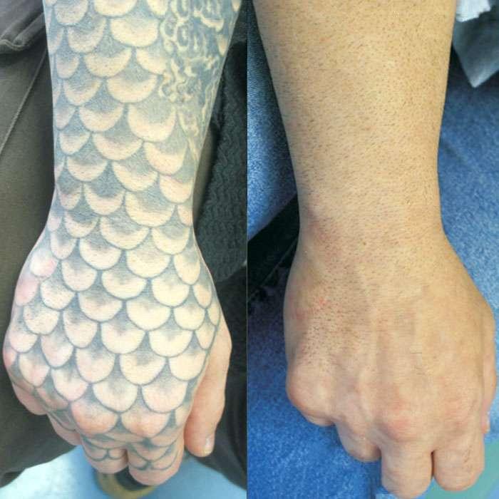 Laser behandelingen - Tattoo verwijderen | Beauty Care Nederland