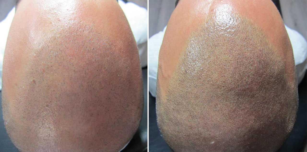 Combinatie behandeling FUE en Micro Hair Pigmentation | Beauty Care Nederland