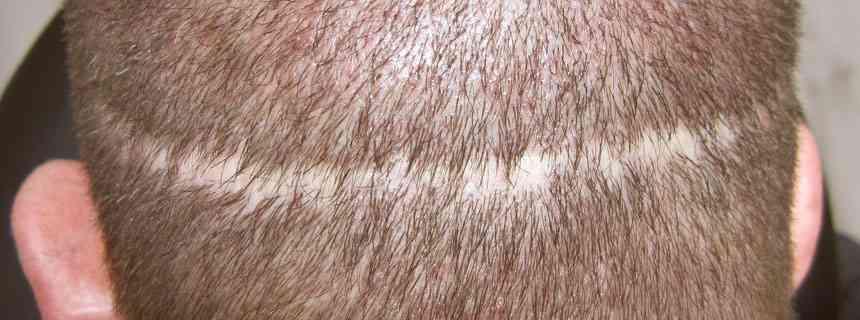 Beauty Care Nederland BCN tips om litteken minder zichtbaar maken