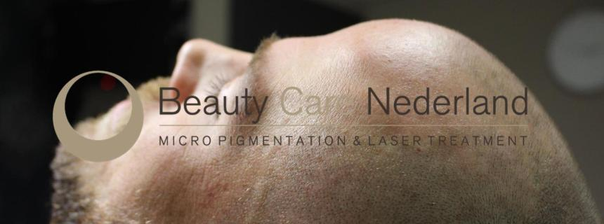 Antwoorden op meest gestelde vragen over Micro Haar Pigmentatie - Beauty Care Nederland BCN