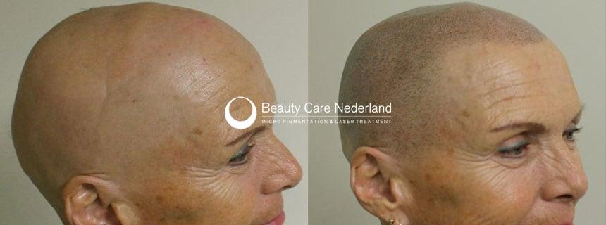 Micro Hair Pigmentation behandeling bij vrouw met Alopecia Totalis door Beauty Care Nederland BCN