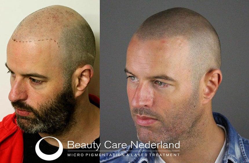 Haartransplantatie in combinatie met Micro Hair Pigmentation (MHP) door Beauty Care Nederland (BCN)