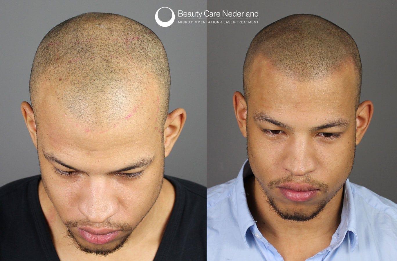 Micro Hair Pigmentation Beauty Care Nederland