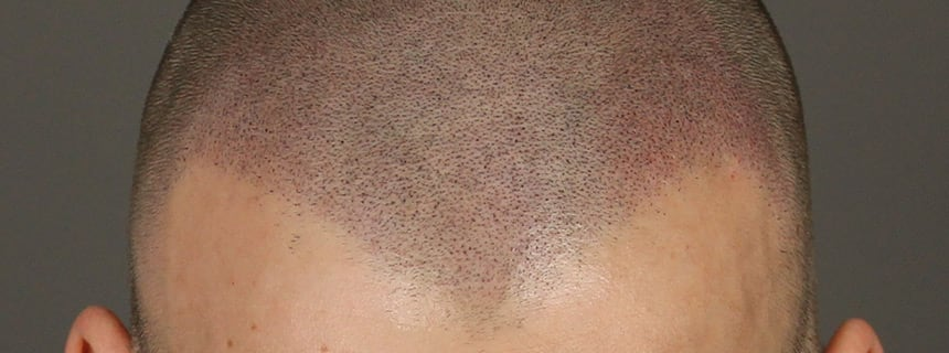 Haarlijn Micro Hair Pigmentation - Beauty Care Nederland