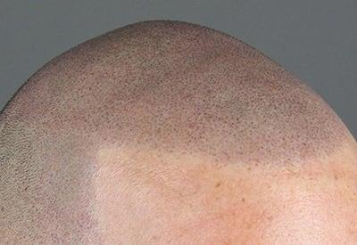 Strakke ronde haarlijn