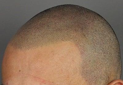 Vrij strakke haarlijn, strakker effect