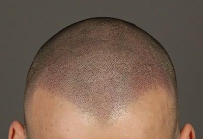 Zachte haarlijn met puntige afwerking