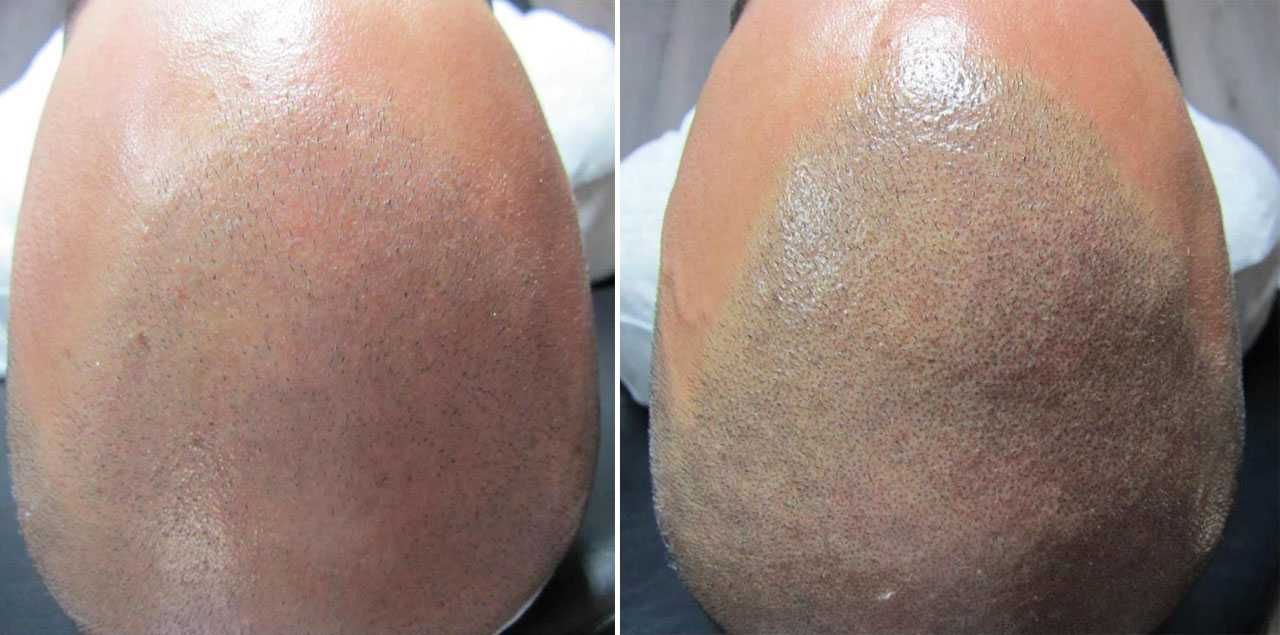 Combination Scalp Micropigmentation and FUE hair transplant | Beauty Care Nederland