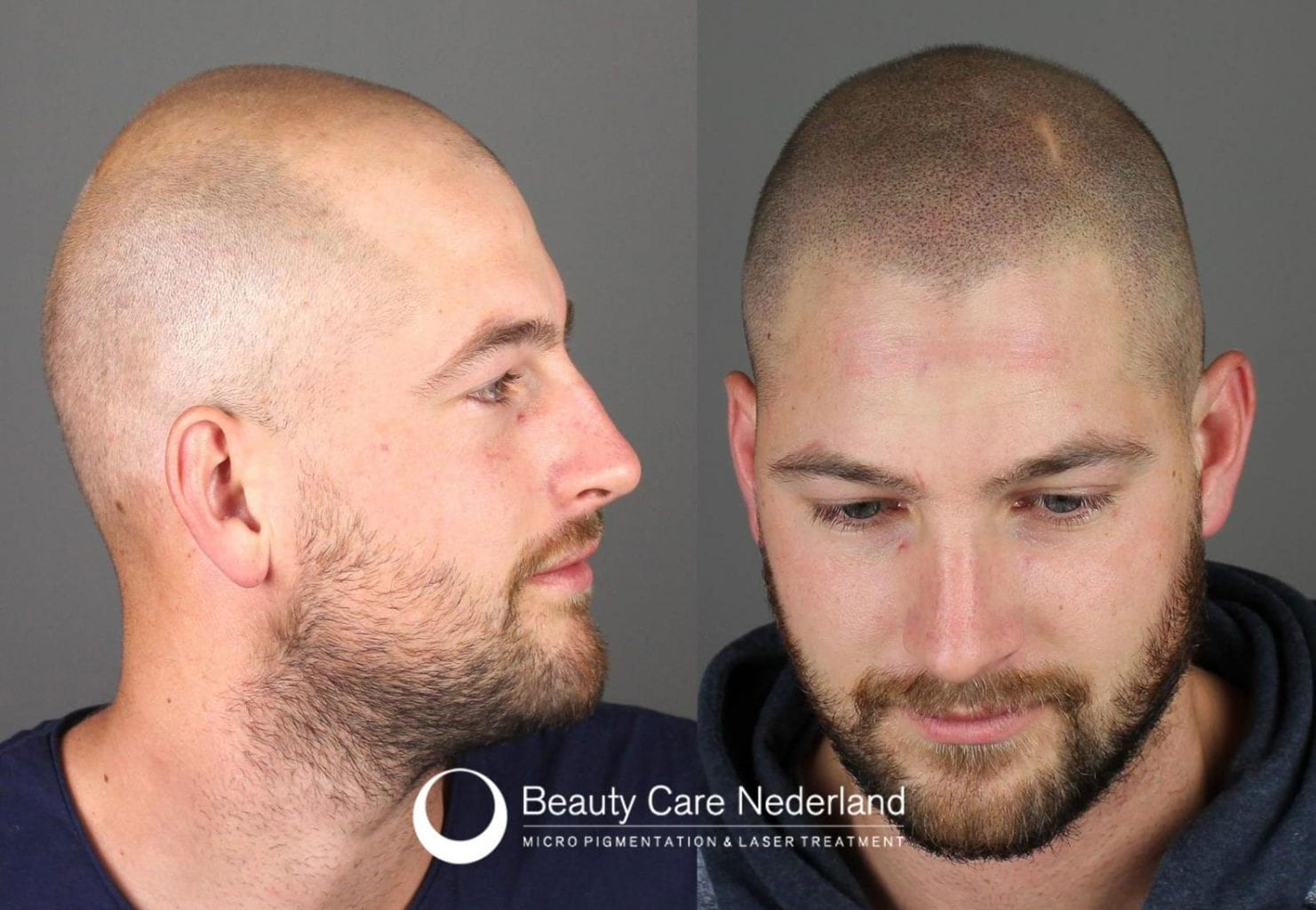 Scalp Micropigmentation Beauty Care Nederland The Netherlands