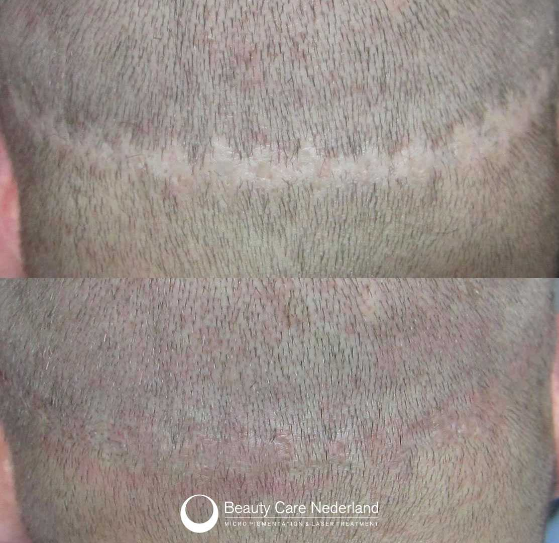 Scalp Micropigmentation | Beauty Care Nederland, The Netherlands