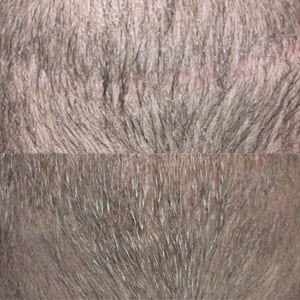 Micro Hair Pigmentation van haartransplantatie littekens Beauty Care Nederland (BCN)