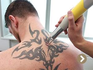 Laser Behandelingen Beauty Care Nederland (BCN)