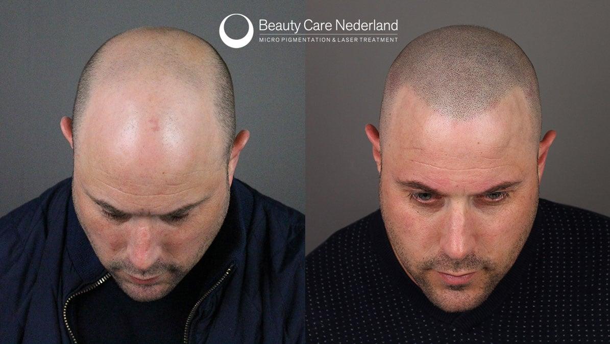 Scalp Micropigmentation Beauty Care Nederland The