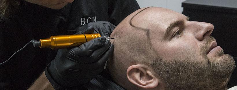 MHP Micro Hair Pigmentatie behandeling